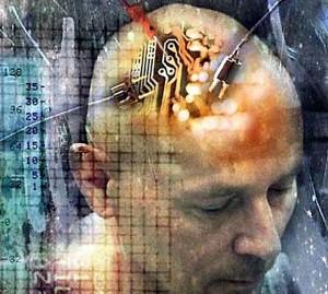 brain-implant